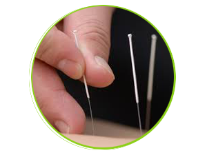Traditional Acupuncture available at Hallam Physiotherapy & Pilates